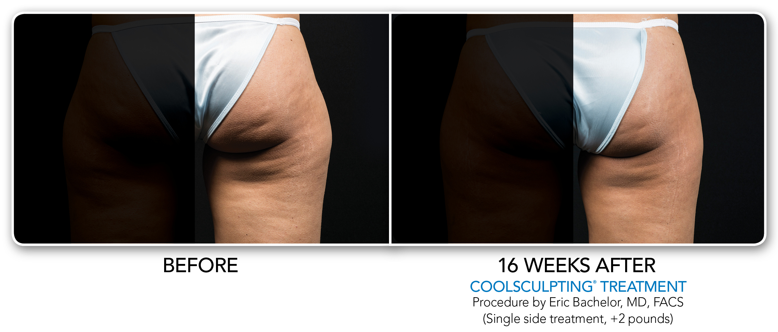 1-CS-Coolsculpting