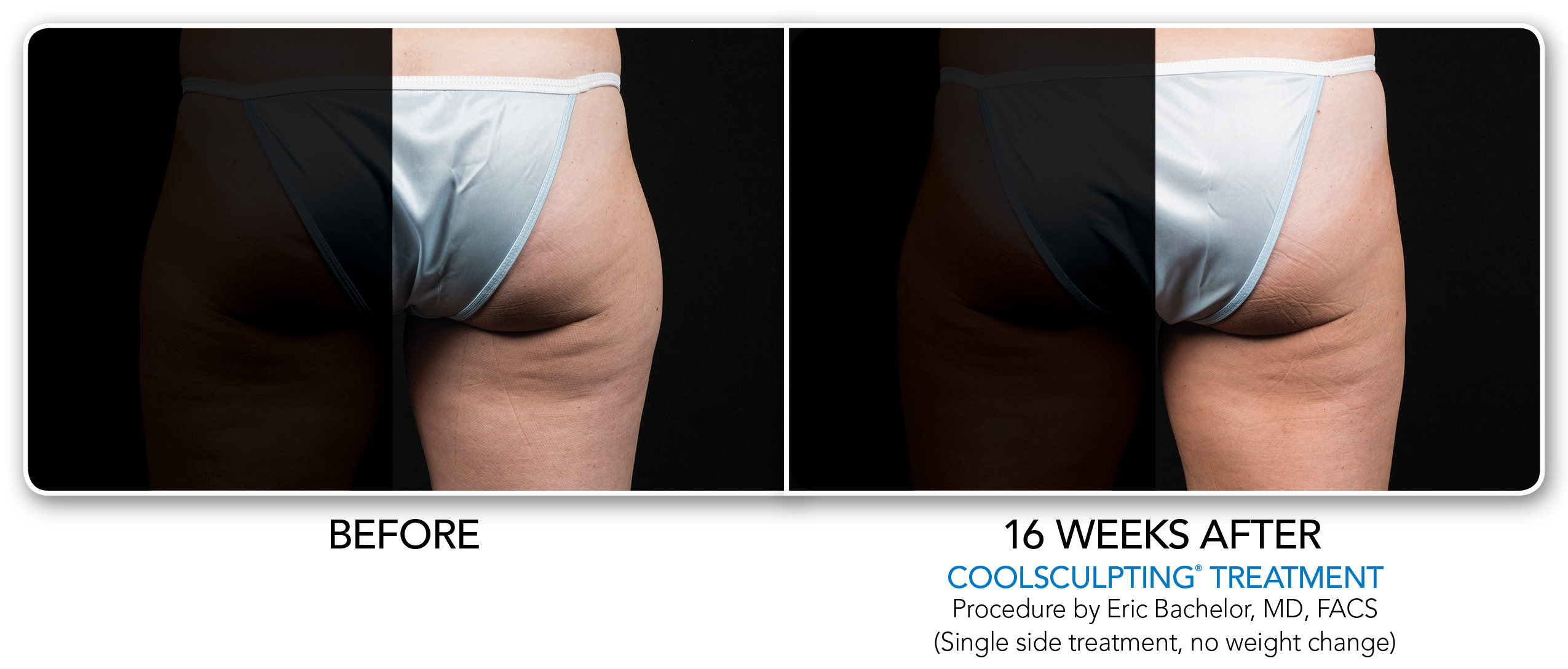 1-CS2-Coolsculpting