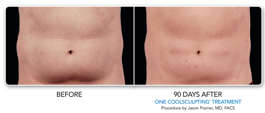 1-belly-coolsculpting