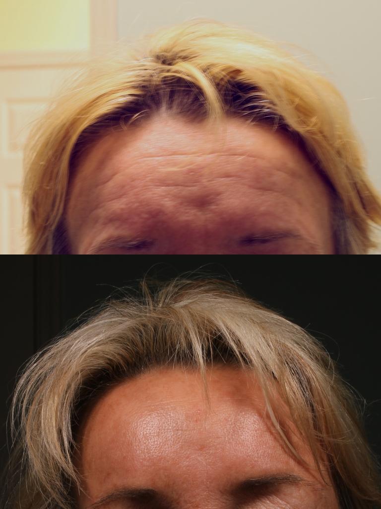 2-A-Forehead-Botox
