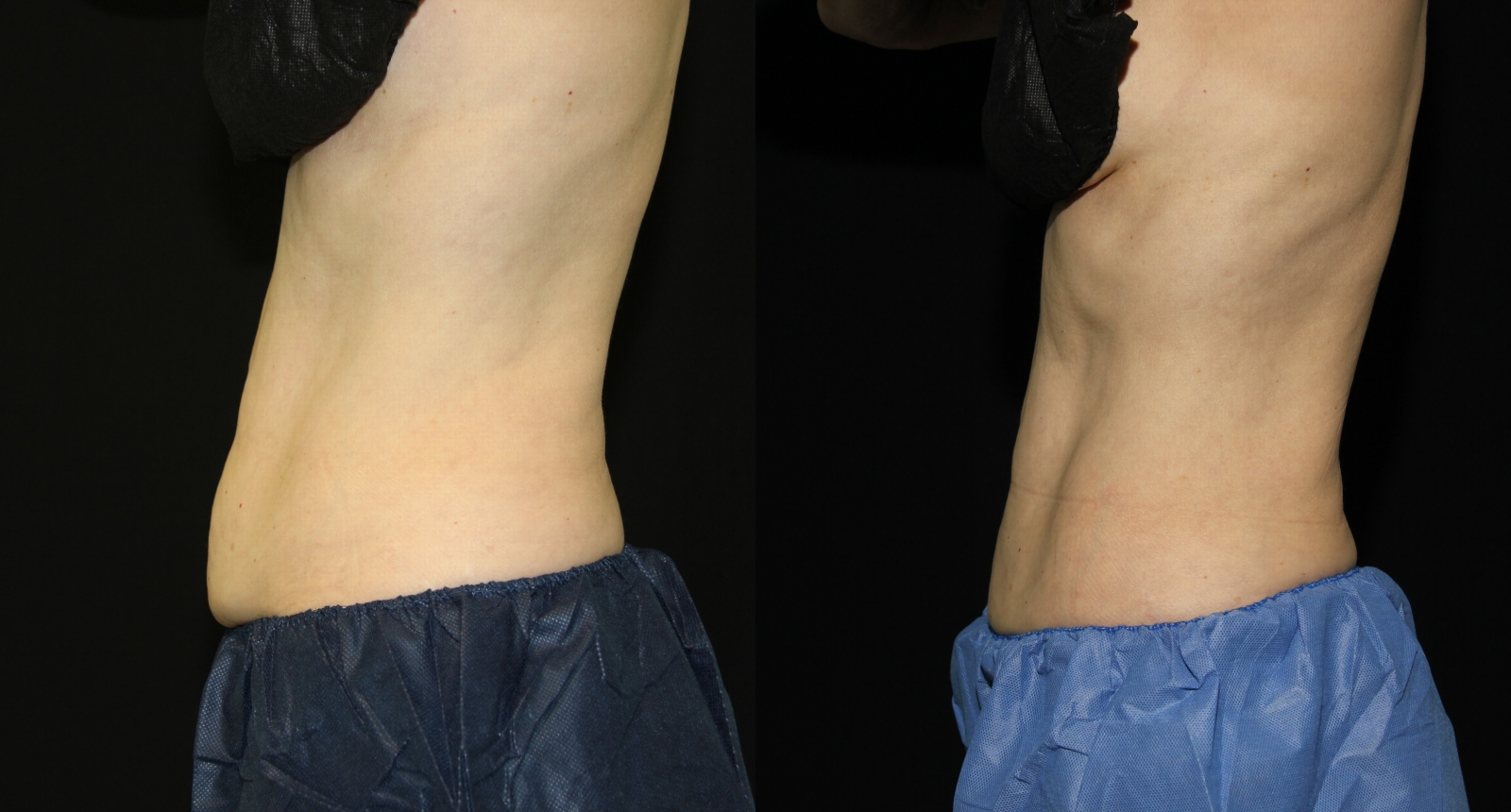 2-SD-Side-Coolsculpting