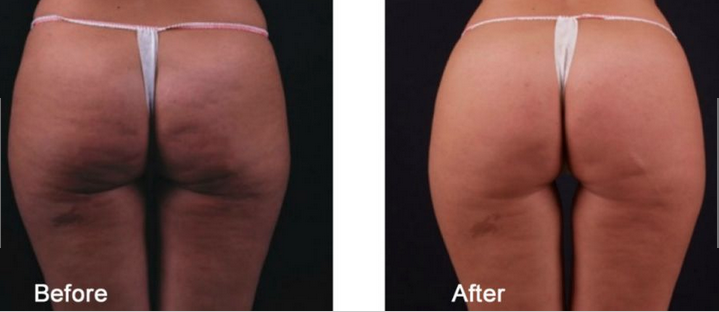 2-exilis-before-after-cellulite