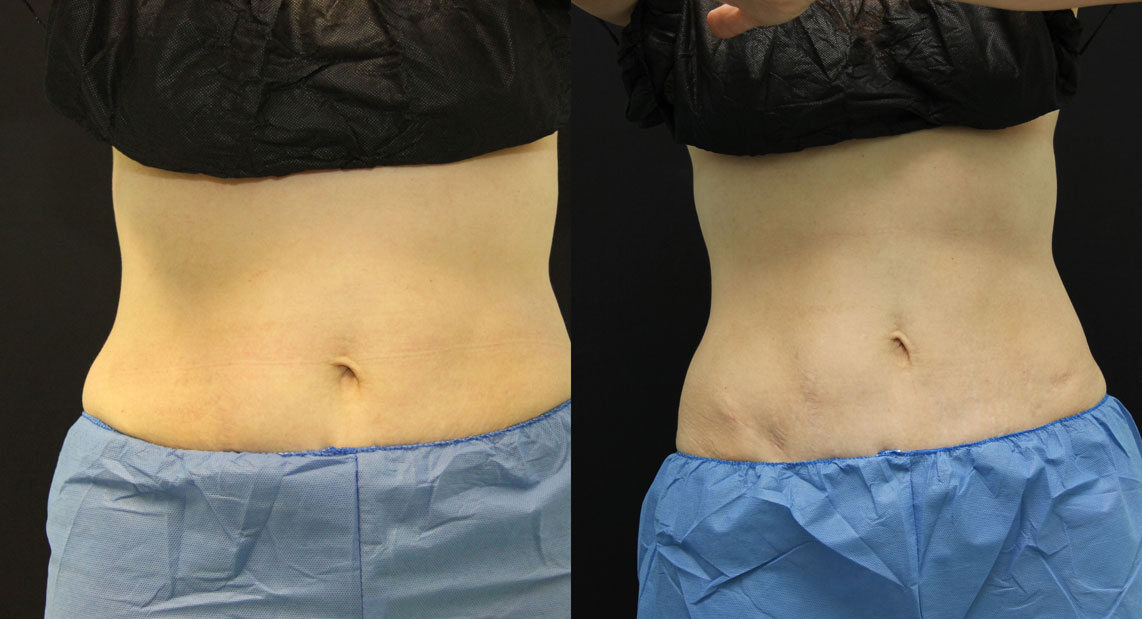 3-SM-Coolsculpting