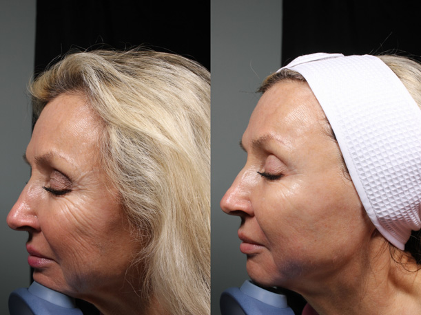 5-MM-Side-Ultherapy