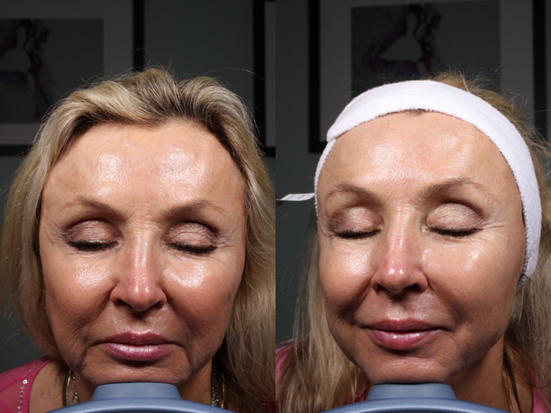 5-MM1-Ultherapy