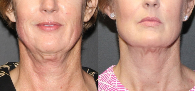 7-EC-Neck-Ultherapy