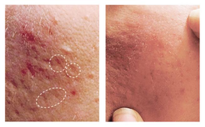 acne scar treatment vero beach