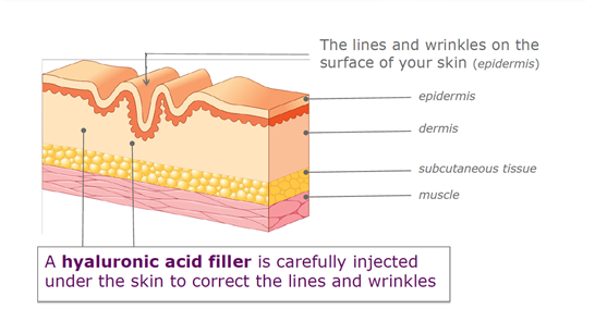 How Juvederm Fillers work