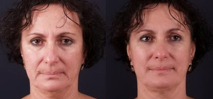 1-exilis-before-after-face