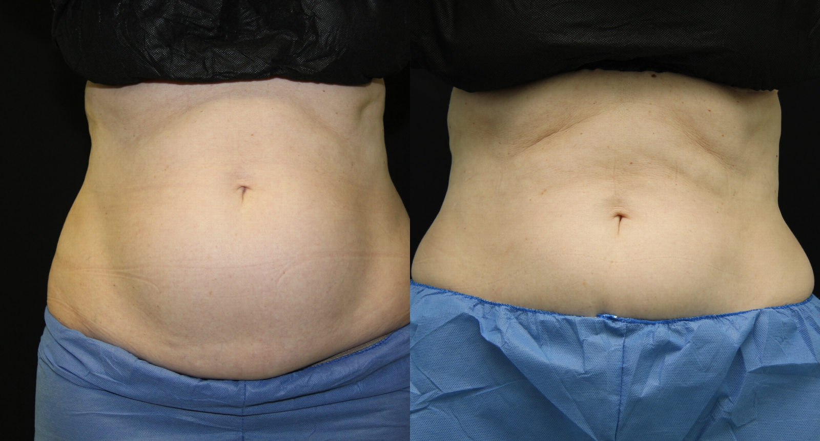 2-SD-Coolsculpting