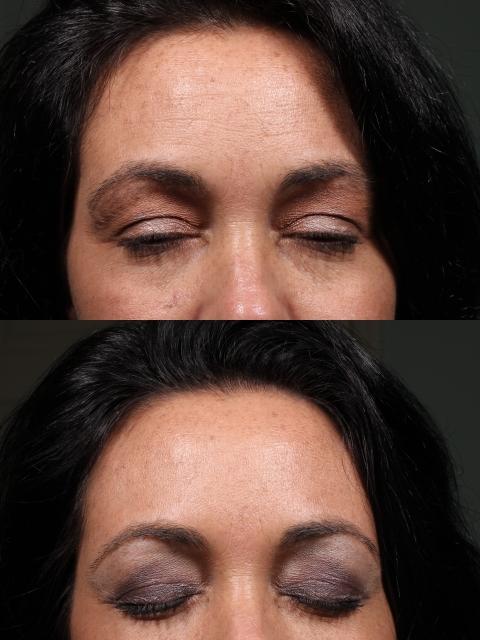 3-RG-Forehead-Botox