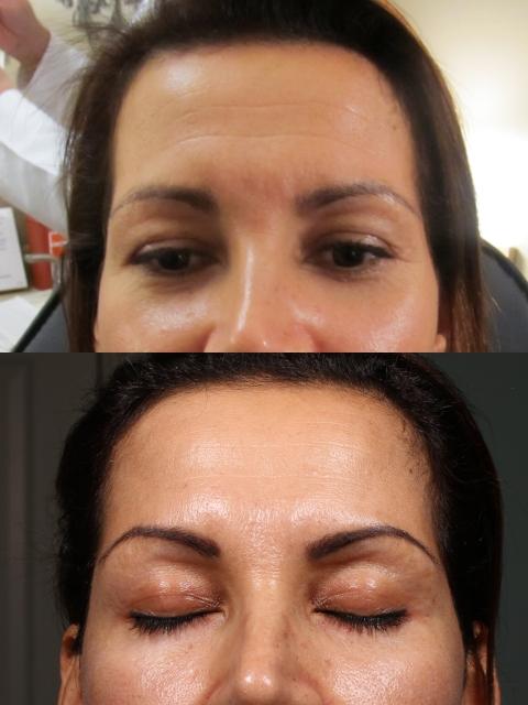 4-ML-Forehead-Botox