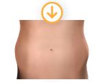bulges of stubborn fat