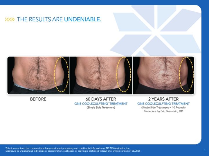 coolsculpting-men