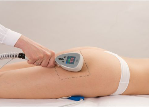 what to expect exilis