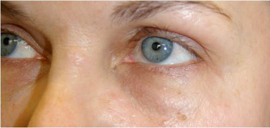 Q&A: Bellafill Nodule/Lump Treatment Under Eye
