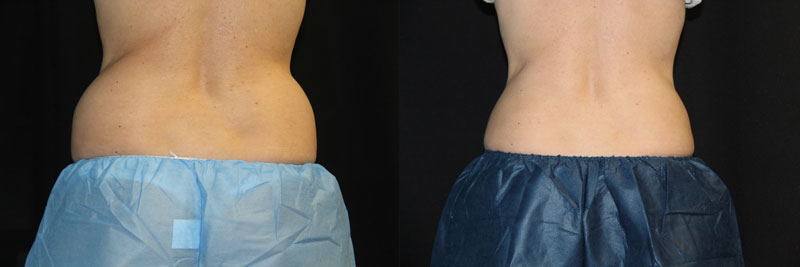 Body-Back-Coolsculpting-MH-Female