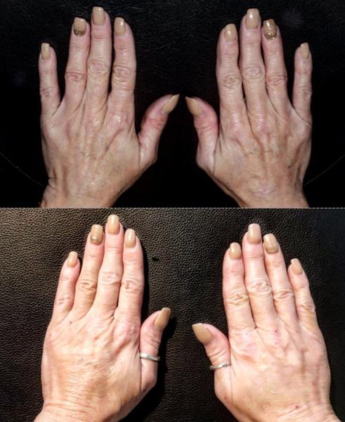 Body-Hands-PDO
