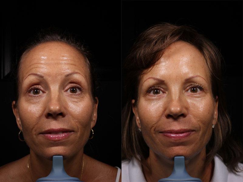 DD-BA-Front-Botox-Forehead