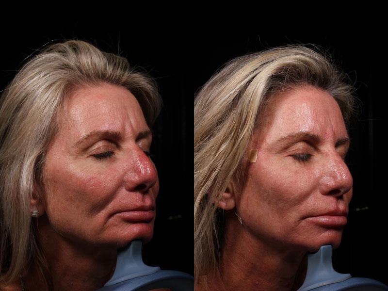 DK-PDO-Versa-Botox-Rest-Vollure((1)