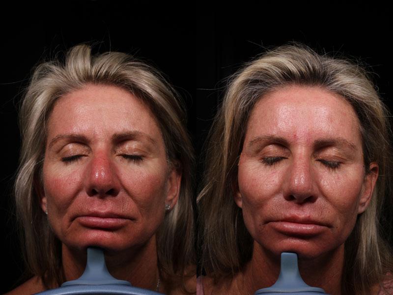 DK-PDO-Versa-Botox-Rest-Vollure(2)