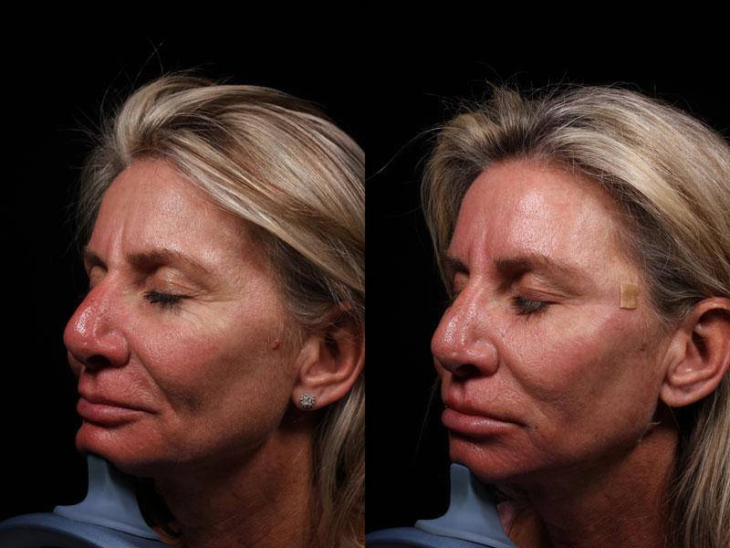 DK-PDO-Versa-Botox-Rest-Vollure(3)