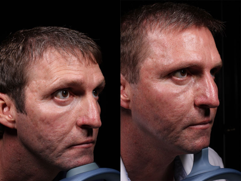 Face-Acne-Scars-Mirconeedling-JS-1-Male