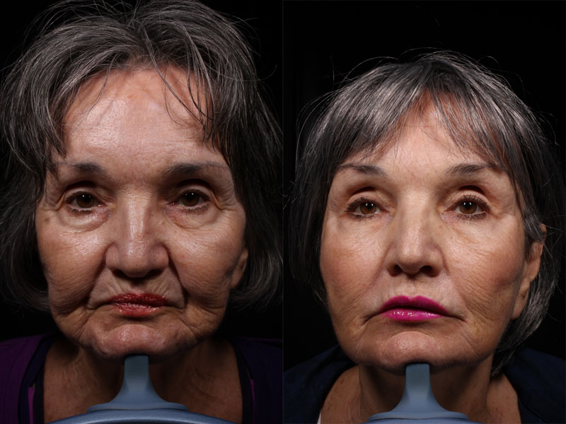Face-Chin-Jawline-Filler-RC-1-Female