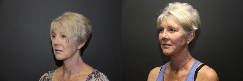 Ultherapy® | Ultrasound - Vero Beach - Facial Rejuvenation FL