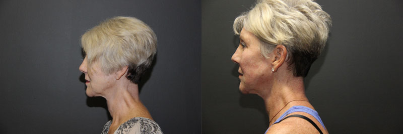 Face-Decollete-Neck-Ultherapy-MG-L-Female