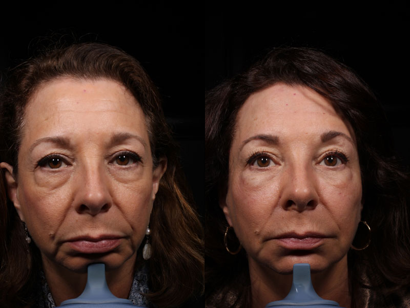 Face-Eye-Under-Eye-Filler-PC-Female