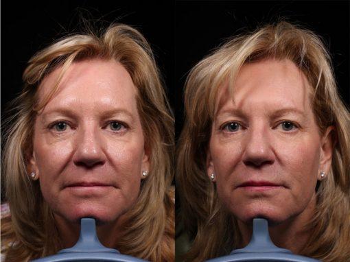 Dysport Vero Beach FL - Facial Rejuvenation FL