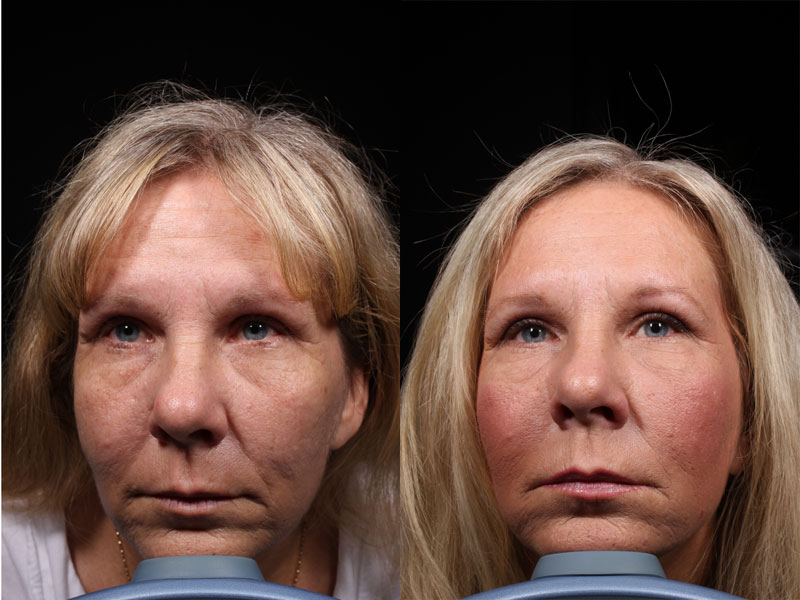 Face-Nasolabial-Folds-Smile-Lines-Microneedling-FP-Female