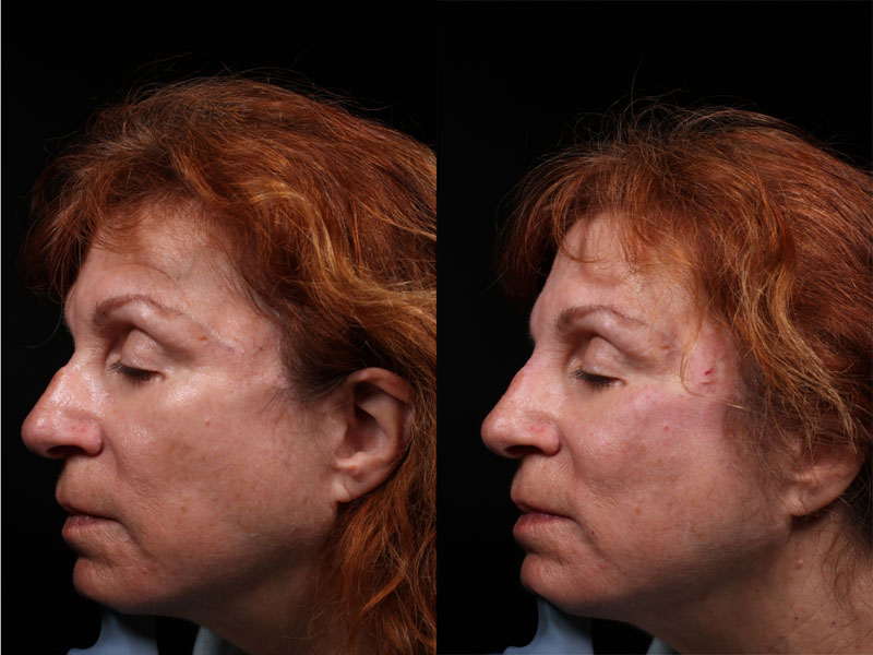 Face-Nose-Filler-Juvederm-Family-IP-Female