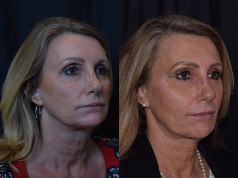 Face-Nose-Filler-Juvederm-Family-LH-Female