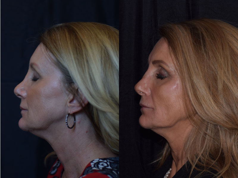 Face-Nose-Filler-Juvederm-Family-LH-L-Female