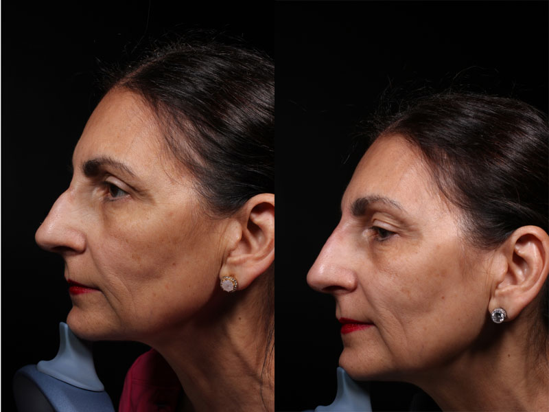 Face-Nose-Filler-Juvederm-Family-VM-L-Female
