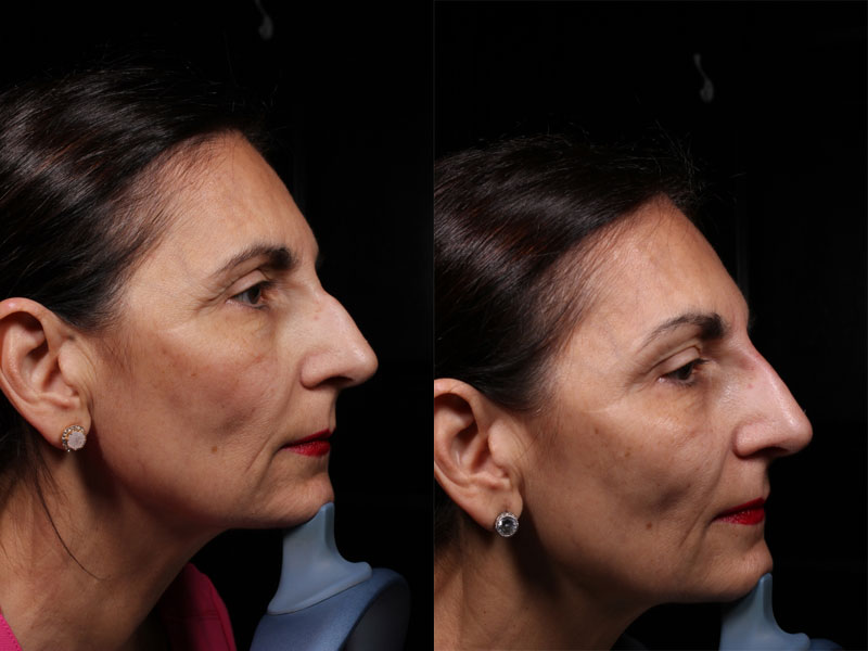Face-Nose-Filler-Juvederm-Family-VM-R-Female