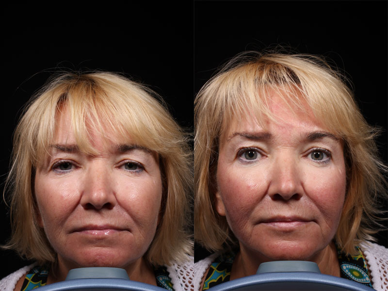 Face-Treatment-Product-Ultherapy-NO-Female