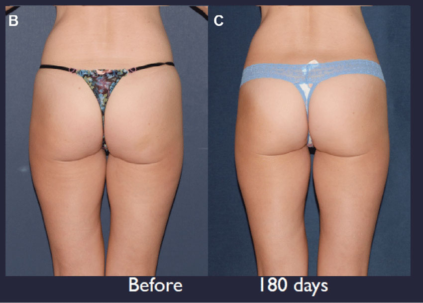 Ultherapy-buttock-treatment