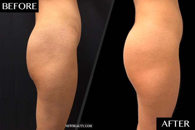 buttock-BA