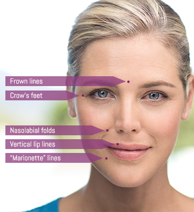 juvederm-treatment-areas