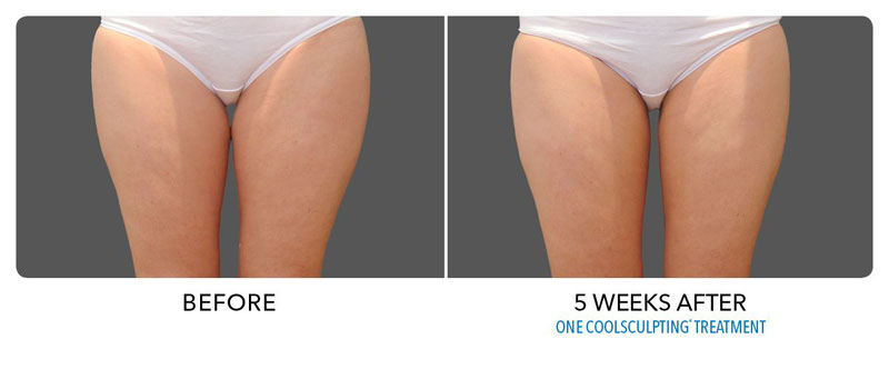 thigh-coolsculpting