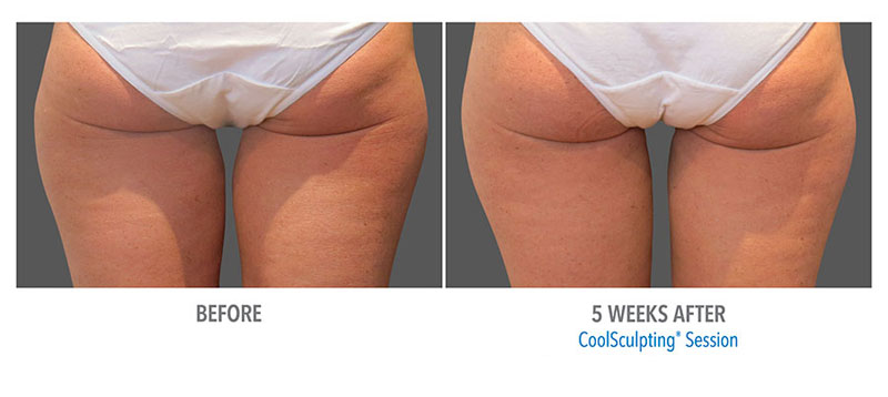 thigh-coolsculpting2