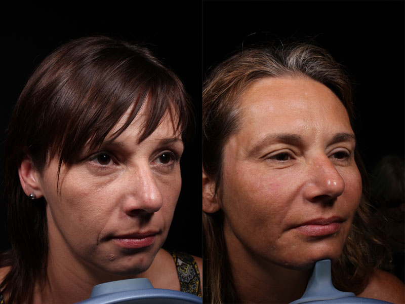Face-Acne-Scars-Vollure-KT-1-Female