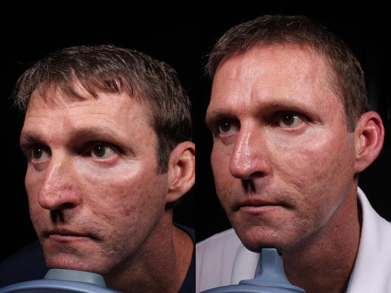 Face-Acne-Scars-Mirconeedling-JS-2-Male