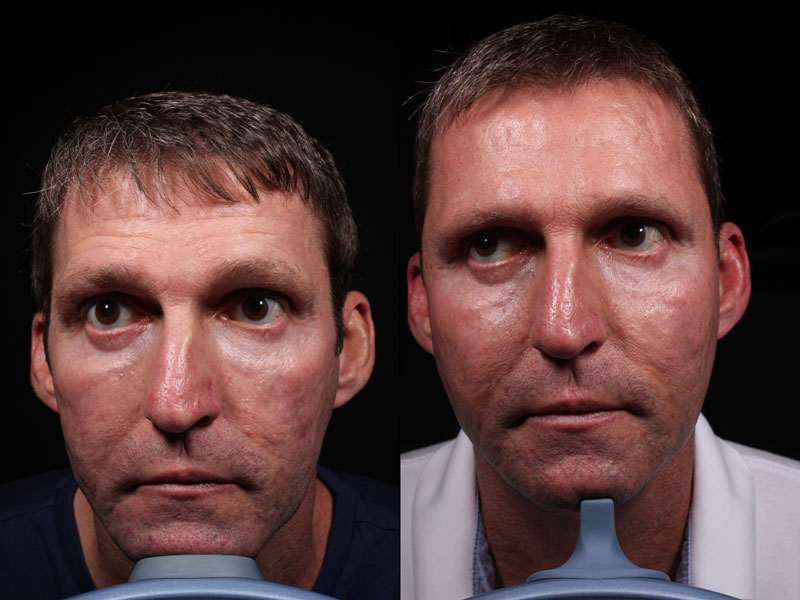 Face-Acne-Scars-Mirconeedling-JS-3-Male
