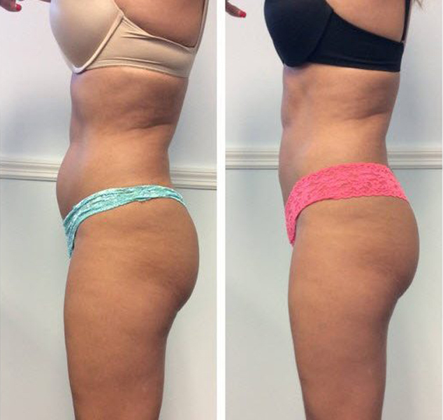 side-coolsculpting-before-after