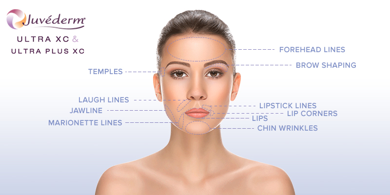 treatment_juvederm