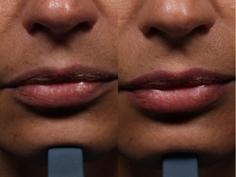 MP-Lips